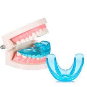 Niềng răng Trainer